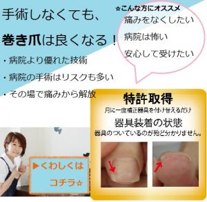 巻き爪バナーボタン画像