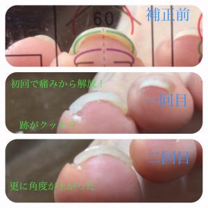 巻き爪治療経過画像