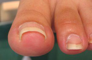 巻き爪の原因である爪の伸ばしすぎ画像