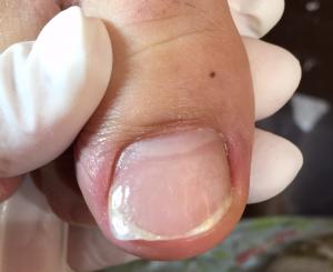 巻き爪治療画像 目立たない器具