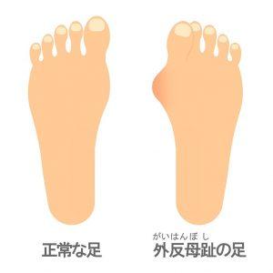 外反母趾のイラスト 正常と異常