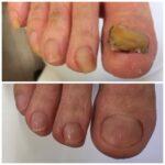爪甲鉤弯症 3