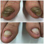 爪甲鉤弯症